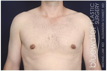 Male Breast Reduction After Photo by Michael Law, MD; Raleigh, NC - Case 44491