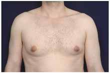 Male Breast Reduction Before Photo by Michael Law, MD; Raleigh, NC - Case 44491