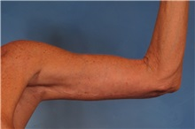 Arm Lift After Photo by Kent Hasen, MD; Naples, FL - Case 30692