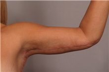 Arm Lift After Photo by Kent Hasen, MD; Naples, FL - Case 30693