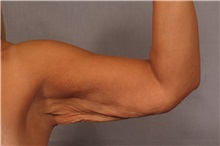 Arm Lift Before Photo by Kent Hasen, MD; Naples, FL - Case 30693