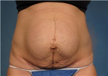 Tummy Tuck Before Photo by Kent Hasen, MD; Naples, FL - Case 30695