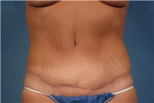 Tummy Tuck After Photo by Kent Hasen, MD; Naples, FL - Case 30696