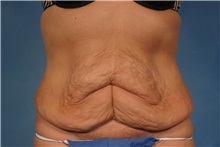 Tummy Tuck Before Photo by Kent Hasen, MD; Naples, FL - Case 30696