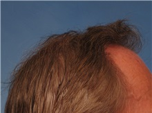 Hair Transplant After Photo by Kent Hasen, MD; Naples, FL - Case 30698