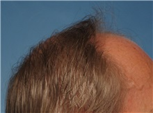 Hair Transplant Before Photo by Kent Hasen, MD; Naples, FL - Case 30698