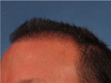 Hair Transplant After Photo by Kent Hasen, MD; Naples, FL - Case 30699