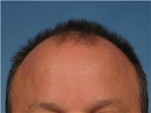 Hair Transplant Before Photo by Kent Hasen, MD; Naples, FL - Case 30699