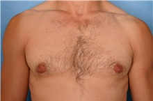 Male Breast Reduction After Photo by Kent Hasen, MD; Naples, FL - Case 30700