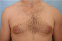 Male Breast Reduction Before Photo by Kent Hasen, MD; Naples, FL - Case 30700
