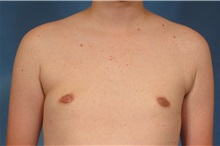 Male Breast Reduction After Photo by Kent Hasen, MD; Naples, FL - Case 30701