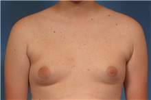 Male Breast Reduction Before Photo by Kent Hasen, MD; Naples, FL - Case 30701