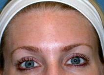 Botulinum Toxin After Photo by Kent Hasen, MD; Naples, FL - Case 6862