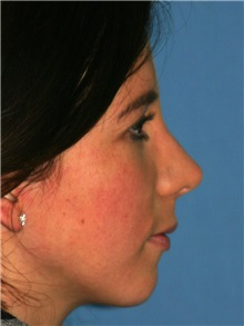 Rhinoplasty After Photo by Luis Bermudez, MD, FACS; Bogota, DC - Case 25451