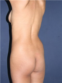 Buttock Implants Before Photo by Luis Bermudez, MD, FACS; Bogota, DC - Case 29501