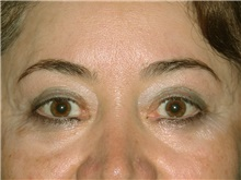 Eyelid Surgery After Photo by Luis Bermudez, MD, FACS; Bogota, DC - Case 29503