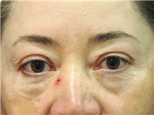Eyelid Surgery Before Photo by Luis Bermudez, MD, FACS; Bogota, DC - Case 29503