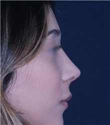 Rhinoplasty After Photo by Luis Bermudez, MD, FACS; Bogota, DC - Case 33997