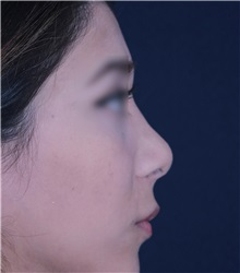 Rhinoplasty Before Photo by Luis Bermudez, MD, FACS; Bogota, DC - Case 33997