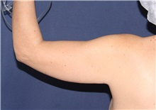 Liposuction Before Photo by Luis Bermudez, MD, FACS; Bogota, DC - Case 33998