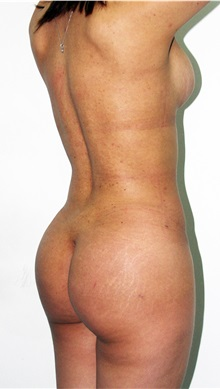 Buttock Implants After Photo by Luis Bermudez, MD, FACS; Bogota, DC - Case 34013