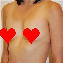 Breast Augmentation Before Photo by Roy Kim, MD; San Francisco, CA - Case 31250