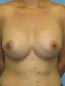 Breast Augmentation After Photo by Mark Jabor, MD; El Paso, TX - Case 29482