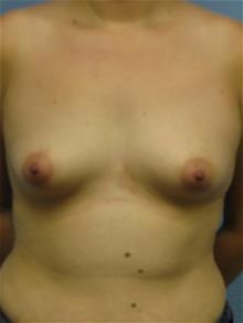Breast Augmentation Before Photo by Mark Jabor, MD; El Paso, TX - Case 29482