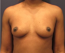 Breast Augmentation Before Photo by Michele Shermak, MD; Lutherville Timonium, MD - Case 39865