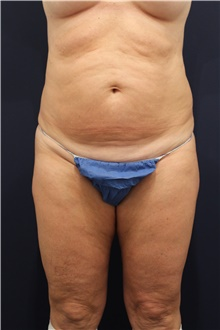Tummy Tuck Before Photo by Michele Shermak, MD; Lutherville, MD - Case 39948