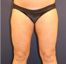 Liposuction After Photo by Michele Shermak, MD; Lutherville, MD - Case 39950
