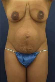 Tummy Tuck Before Photo by Michele Shermak, MD; Lutherville, MD - Case 39961