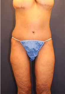 Tummy Tuck After Photo by Michele Shermak, MD; Lutherville, MD - Case 39969