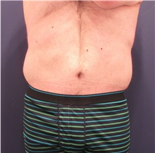 Body Lift After Photo by Michele Shermak, MD; Lutherville, MD - Case 39971