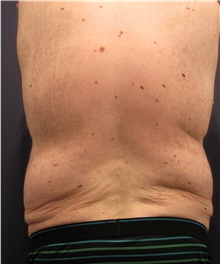 Body Lift Before Photo by Michele Shermak, MD; Lutherville, MD - Case 39971