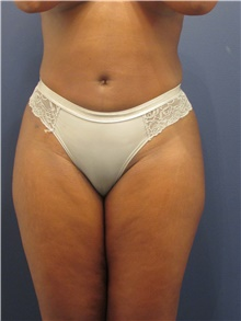 Liposuction After Photo by Michele Shermak, MD; Lutherville, MD - Case 39973