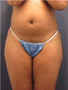 Liposuction Before Photo by Michele Shermak, MD; Lutherville, MD - Case 39973