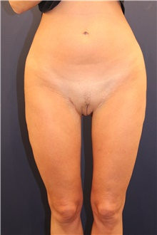 Thigh Lift After Photo by Michele Shermak, MD; Lutherville, MD - Case 39975