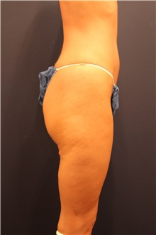 Thigh Lift Before Photo by Michele Shermak, MD; Lutherville, MD - Case 39975