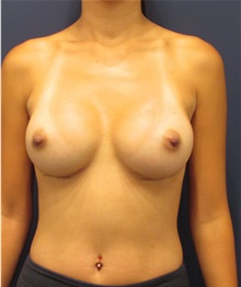 Breast Implant Revision After Photo by Michele Shermak, MD; Lutherville, MD - Case 39986