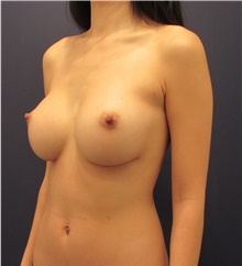 Breast Implant Revision Before Photo by Michele Shermak, MD; Lutherville, MD - Case 39986