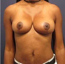 Breast Lift After Photo by Michele Shermak, MD; Lutherville, MD - Case 39987
