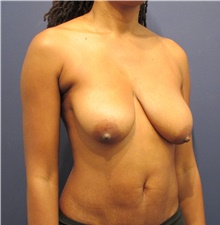 Breast Lift Before Photo by Michele Shermak, MD; Lutherville, MD - Case 39987