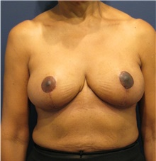 Breast Reduction After Photo by Michele Shermak, MD; Lutherville, MD - Case 39992
