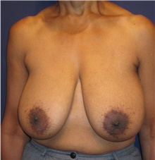 Breast Reduction Before Photo by Michele Shermak, MD; Lutherville Timonium, MD - Case 39992