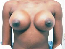 Breast Augmentation After Photo by Keith Berman, MD; Staten Island, NY - Case 29328