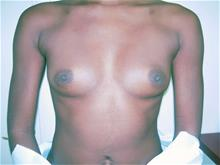 Breast Augmentation Before Photo by Keith Berman, MD; Staten Island, NY - Case 29328