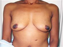 Breast Augmentation Before Photo by Keith Berman, MD; Staten Island, NY - Case 29329