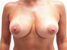 Breast Augmentation After Photo by Keith Berman, MD; Staten Island, NY - Case 29330