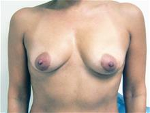 Breast Augmentation Before Photo by Keith Berman, MD; Staten Island, NY - Case 29330